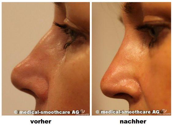 Nasen op vorher nachher höcker